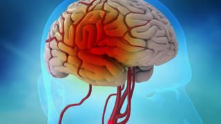 三维医学动画视频模拟-演示脑梗手术过程