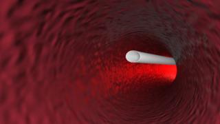 医学高清三维动画视频-演示微创手术过程