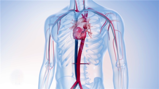 心脏手术-三维动画演示过程