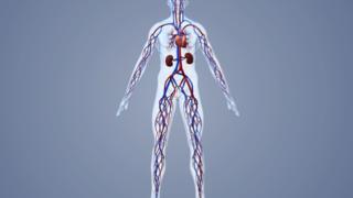 医学动画制作血管成形手术3D动画
